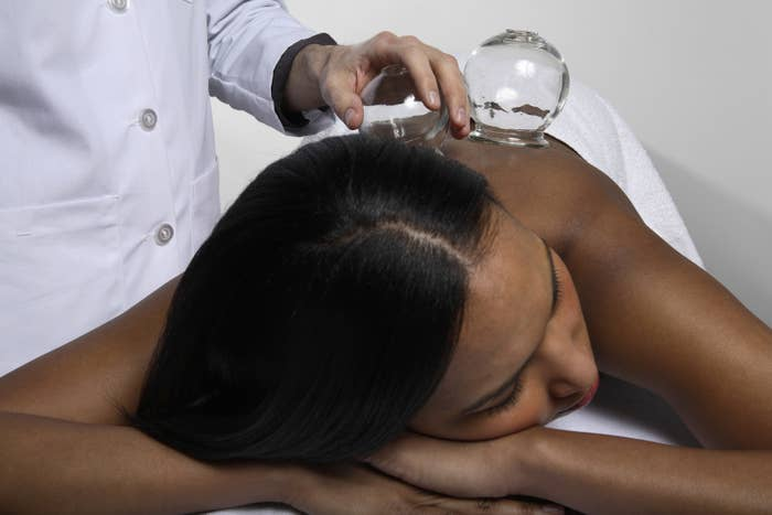 Actual glass cups are heated and pressed to the skin, creating a powerful suction that is meant to increase circulation and promote healing in the body. This practice has actually been around since the fourth century, making it one of the oldest methods of Chinese medicine.