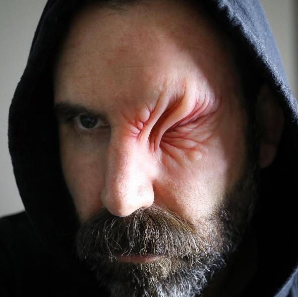 Moço, você já foi ao médico? Acho que o seu olho pode estar infeccionado.