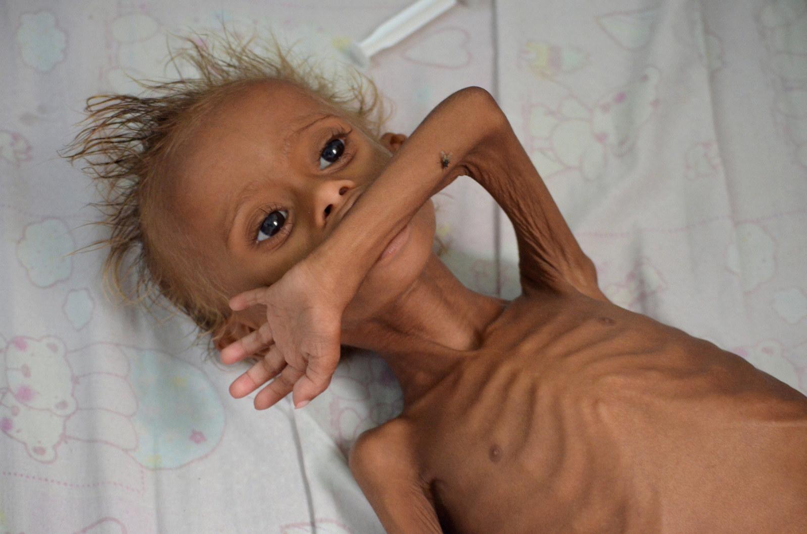 栄養失調で弱る子供たち イエメンで起きていること