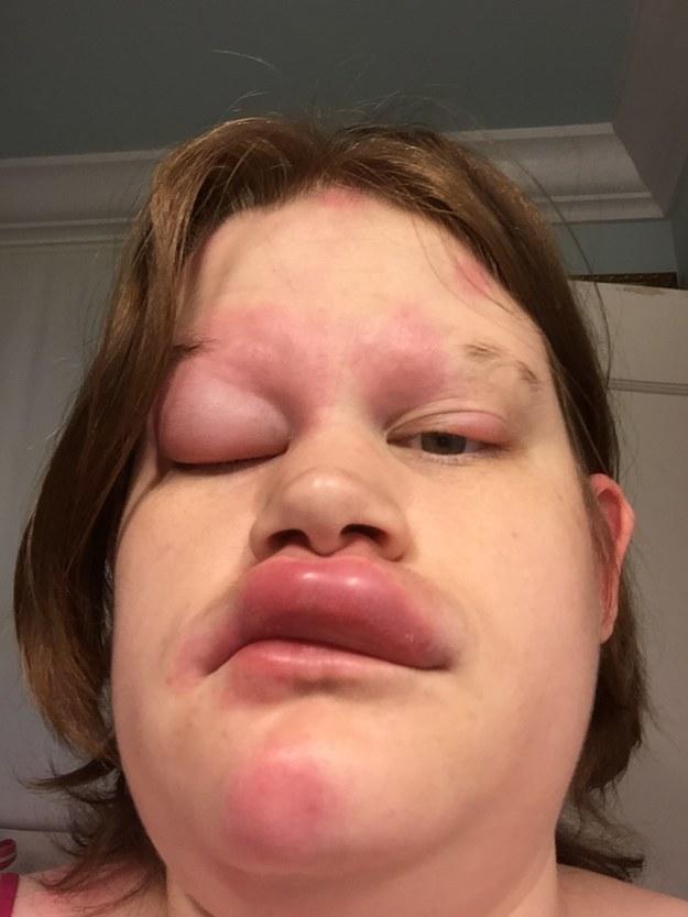 Sudden allergy to shrimp