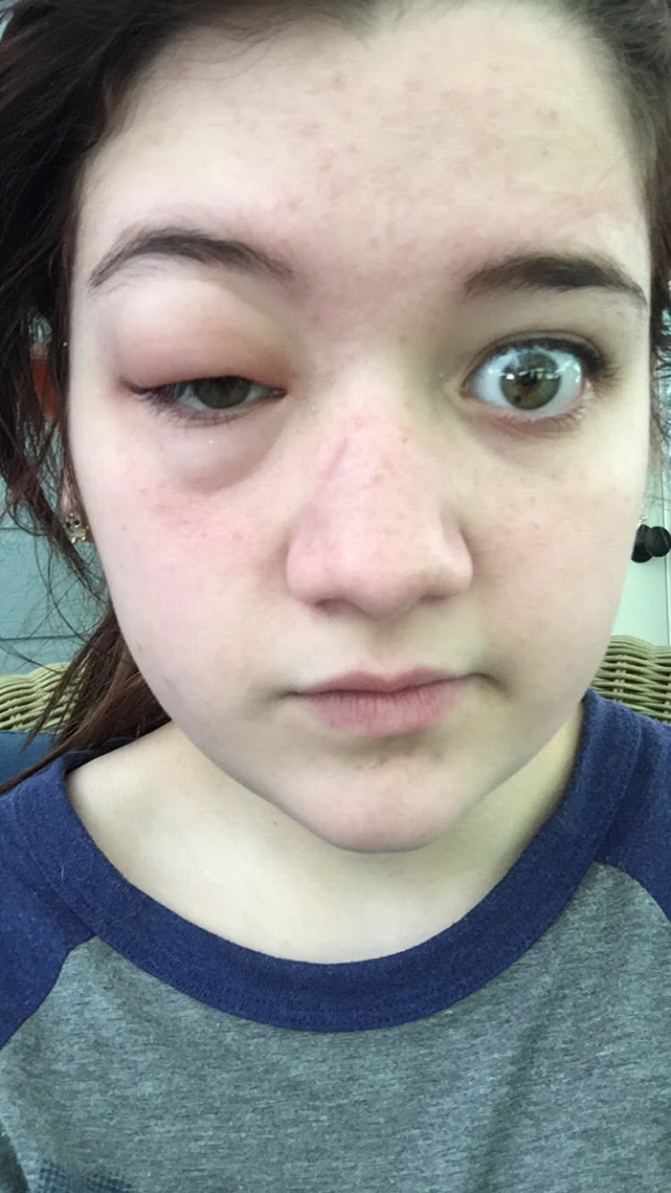 31 allergische reaktionen bei denen schon das hinsehen schmerzen bereitet. Black Bedroom Furniture Sets. Home Design Ideas