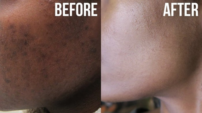 There are a few things that cause hyper-pigmentation, including...- Overexposure to the sun. (As this causes melanin production to increase.)- Pregnancy (Hormonal changes during pregnancy stimulates a temporary increase in your body's production of melanin.)- Picking at your skin. (One of the ways your body responds to injury or inflammation is by overproducing melanin.)