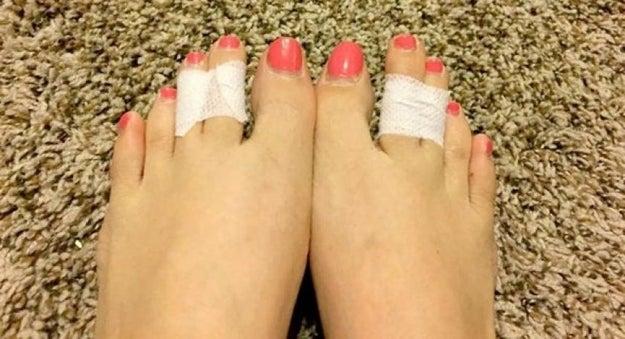 Ponte cinta adhesiva entre el tercer y el cuarto dedo del pie.