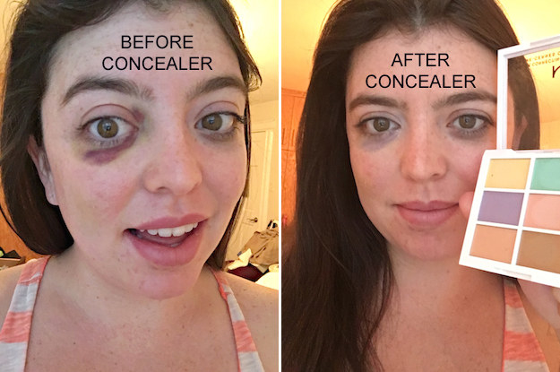 A person with a black eye and a person with a barely visible black eye after using the colour-correcting palette