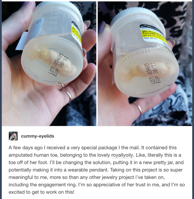 A Tumblr User Mailed Another Tumblr User Her Severed Toe To Make Into A Necklace