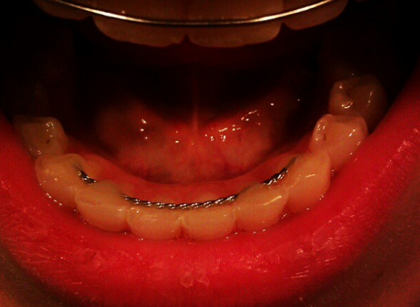 Retainers In Mouth 118