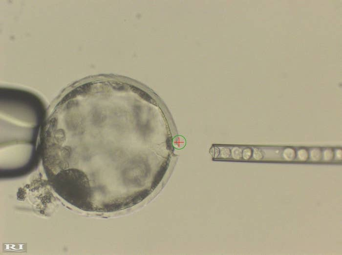 Human stem cells being injected into a pig embryo.