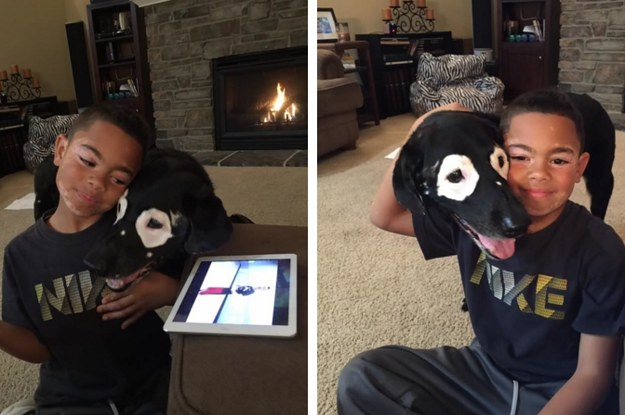 A Dog Helped This Little Boy Learn To Love His Spots And It's Quite Possible The Purest Friendship Ever