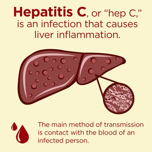 """Hepatitis C or """"Hep C"""" is more common in certain areas of the world, e.g. Africa and the Middle East. But even in the UK, more than 200,000 people have chronic (long-term) infection with the virus. It's spread via blood contact, in several ways."""