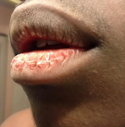 Arrancar la piel seca de tus labios.