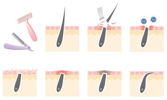 'Algunas veces los pelos no podrán crecer a través del folículo piloso y salir del poro, y terminarán creciendo justo por debajo de la superficie de la piel, provocando hinchazón e inflamación', explica Miest. 'El pelo crecerá por la fuerza durante tanto tiempo como tú se lo permitas, así que tendrás que extraerlo o ir a que te lo extraigan'.Dice que la mejor forma de hacer esto es tomar un objeto estéril puntiagudo (como una aguja) y después de suavizar el vello y la piel circundante con una compresa caliente, sacar el vello. Sin embargo, esto puede resultar peligroso, así que solo hazlo si el vello está verdaderamente cerca de la superficie de tu piel y puedes verlo con claridad. Si no puedes, deberías acudir a tu dermatólogo para que lo saque. Depilarte y afeitarte puede también aumentar la probabilidad de que tengas pelos enterrados, a lo cual nos referiremos en breve.