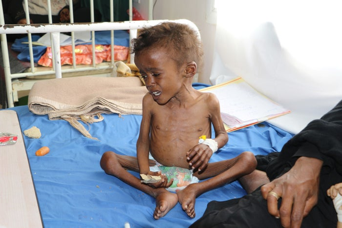 Jamal Mujalli al-Mashriqi, 4, who suffers from malnutrition, sits on a bed at a hospital in the northwestern Yemeni city of Saada.