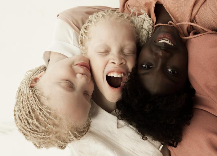 «Nos diversités ethnique, culturelle et physique sont comme des variations de la même fleur. Certaines s'adaptent mieux à l'hiver et d'autres à l'été, mais toutes, malgré leurs particularités, partagent les mêmes besoins de base, comme recevoir et partager de l'amour», déclare Vinicius à BuzzFeed.