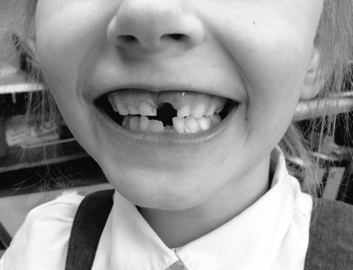 Enfiar a língua nos espacinhos onde estavam os dentes que caíram.