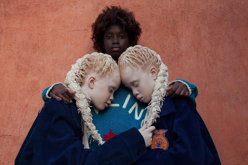 Estas fotos de hermanas con albinismo cambiarán tu idea de la belleza