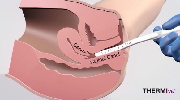 Circumcised hand job technique