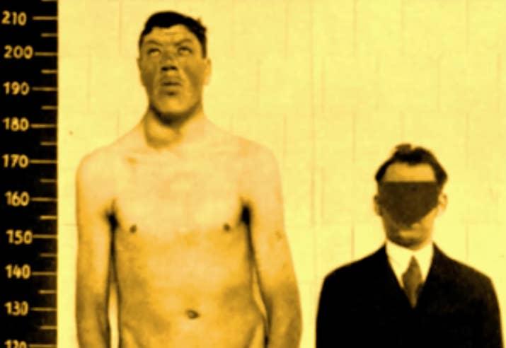En 1917, a la edad de 18, el austrohúngaro Adam Rainer medía 1,22 metros. Debido a un tumor en su glándula pituitaria, tuvo un crecimiento acelerado que lo colocó en los 2,18 metros para los 32 años. Para su muerte en 1950, a la edad de 51, medía 2,33 metros. Es la única persona en la historia documentada en ser tanto un enano como un gigante.