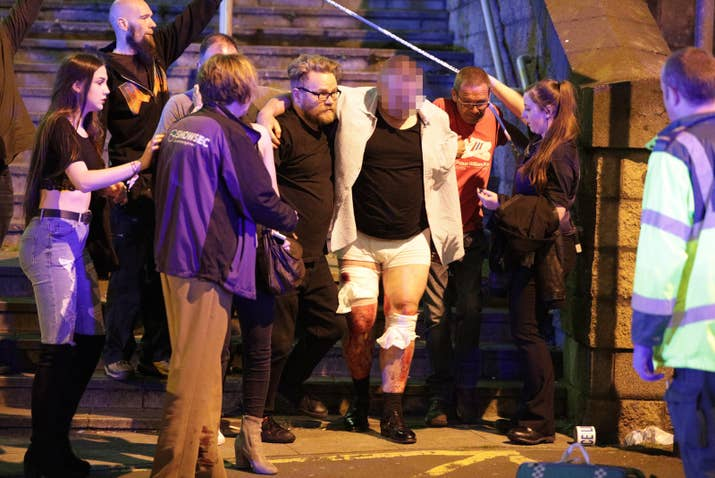 A man with injuries is helped outside the Manchester Arena Monday night.