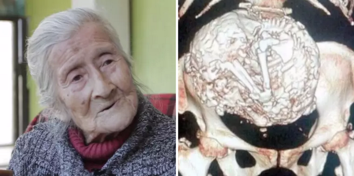 When 91-year-old Estela Meléndez, of La Boca, Chile, took a fall, doctors decided to give her an X-ray. To their surprise, they discovered a calcified fetus that had been in her uterus for over six decades.Learn more about Estela Meléndez and her story here.