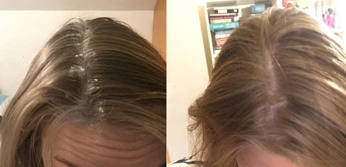 A promessa: Bicarbonato de sódio pode ser utilizado no lugar do xampu seco para absorver a oleosidade e refrescar o cabelo. Como fazer: Peque uma pequena quantidade de bicarbonato de sódio e aplique na raiz. Jogue seu cabelo para trás e use as mãos para espalhar. Funcionou? Tecnicamente sim. Meu cabelo ficou definitivamente menos oleoso. Mas eu não gostei da sensação. O cabelo ficou áspero e como se fosse uma palha. Além disso, ficou bem estático, embora isso aconteça comigo às vezes quando uso xampu seco. Em resumo, o bicarbonato é uma boa solução de quebra-galho, mas vou continuar usando meu xampu seco.