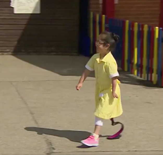Anu is a 7-year-old from the UK who recently got a brand new prosthetic sports blade.
