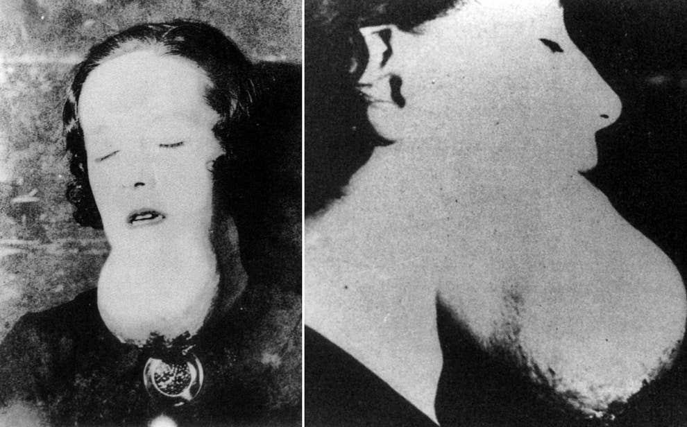 The Forgotten Story Of The Radium Girls, Whose Deaths Saved