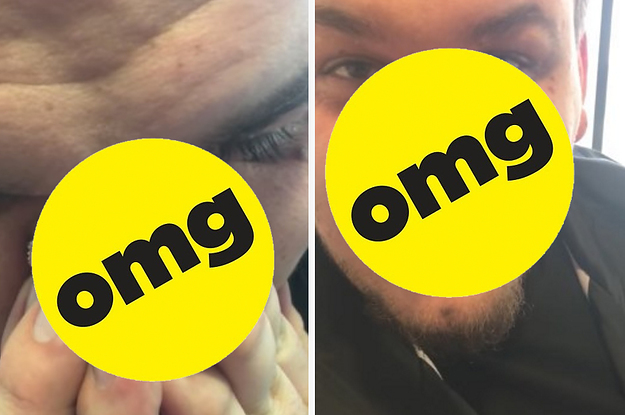 This Guy Popped All His Blackheads At Once And It's