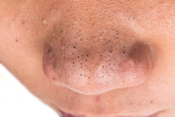 Here's What You Should Know Before Using Pore Strips
