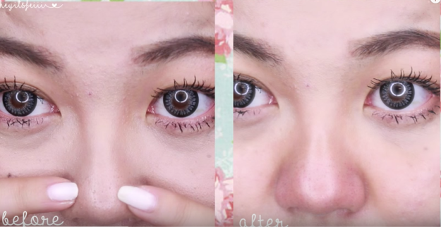 Here's What People Actually Use To Clear Up Their Blackheads