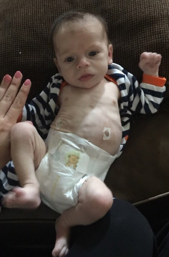 Coleman is now 17 months old, but when he was first brought into their household his conditions were very different — and dire. Coleman's birth parents have had a long battle with drug addiction, and soon after his birth he developed a condition that required surgery on his stomach, multiple family members said.