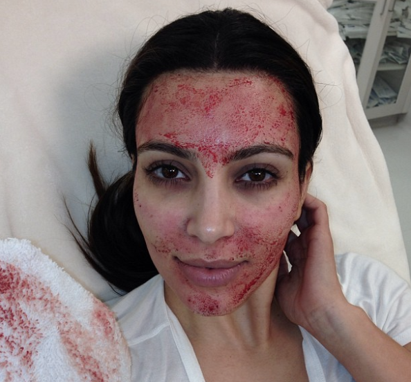 She gets facials with her own blood...