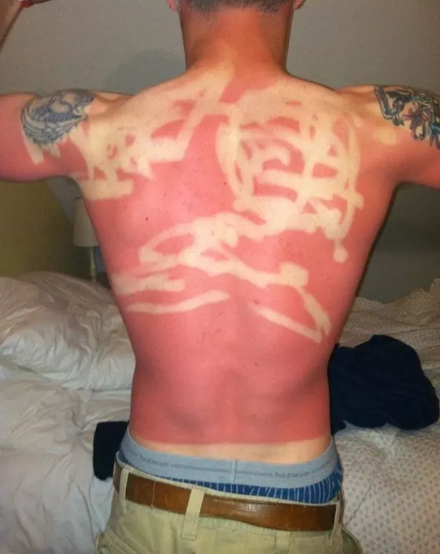 Have you ever gotten a sunburn that was so bad, it was actually painful to look at?