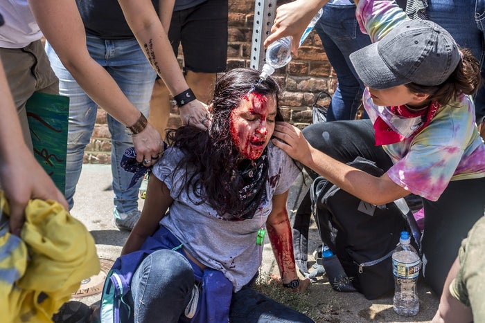 A bloodied woman is treated for wounds after confronting white supremacists during the Unite The Right rally in Charlottesville on Aug. 12.