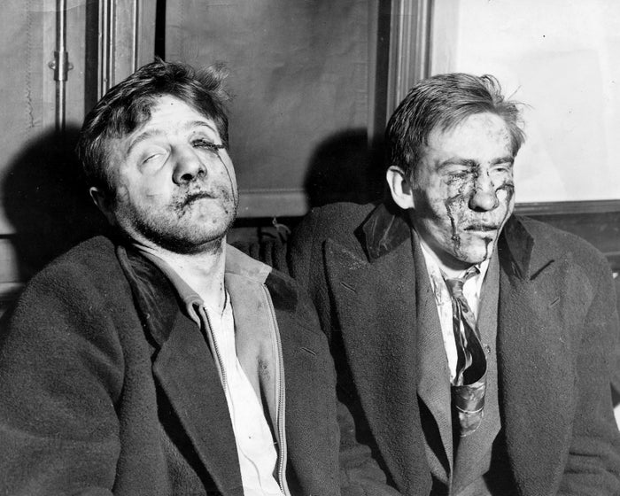 Edward Metelski and Paul Semenkewitz, both charged with the murder of a police officer, sit bruised and bleeding after they escaped from Middlesex County Jail in New Jersey and were captured by police on Dec. 18, 1935.