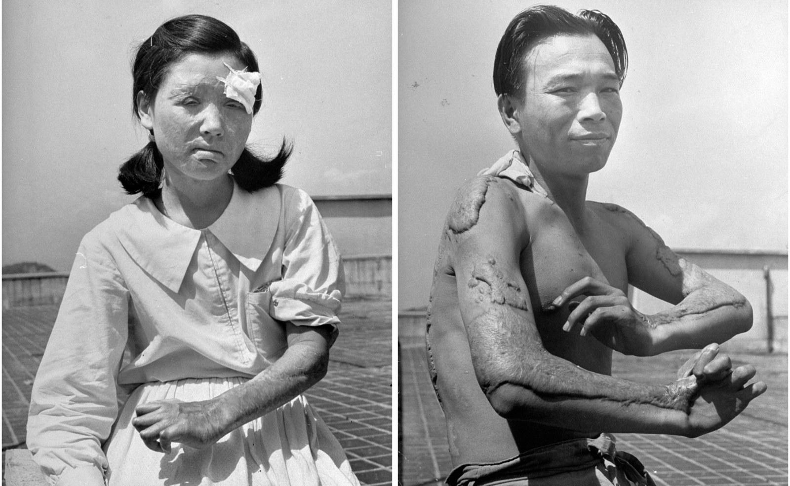 写真で振り返る、原爆投下後の広島と長崎