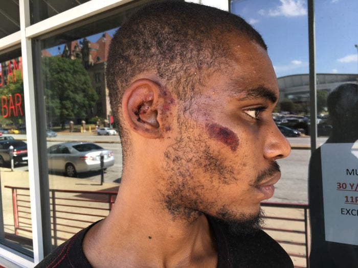 Landry Fort shows off injuries he says he sustained while being arrested Sunday.