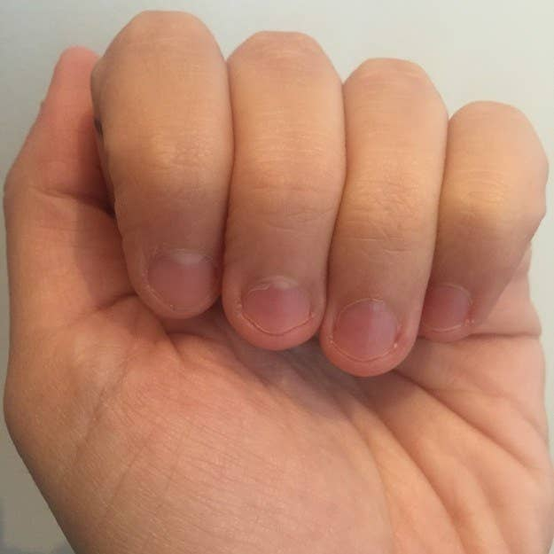 What Helps You With Nail Biting?