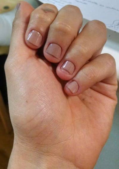 15 Practical Tips To Help You Quit Biting Your Nails