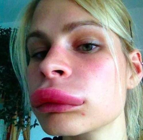 Отекла губа после увеличения губ гиалуроновой кислотой
