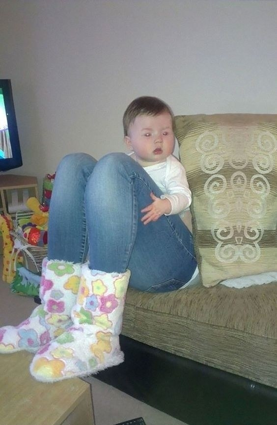 This baby does not have a pair of adult legs.