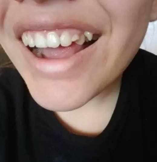 乳歯の犬歯が全然抜けなかったので、大人の犬歯が別のところから生えてきてしまいました。それが気になって、自分の笑顔が好きではありませんでした。でも、高校を卒業してからは、自分の笑顔を受け入れました。今は遠慮せず大笑いしています。 –teenidle