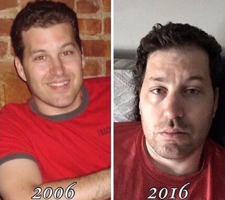 До и после фото дети