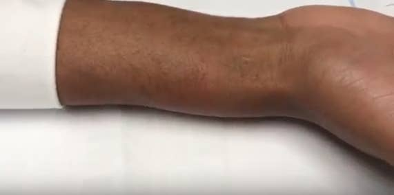 Images provided by Deeq showed the extent of the swelling on his arm.