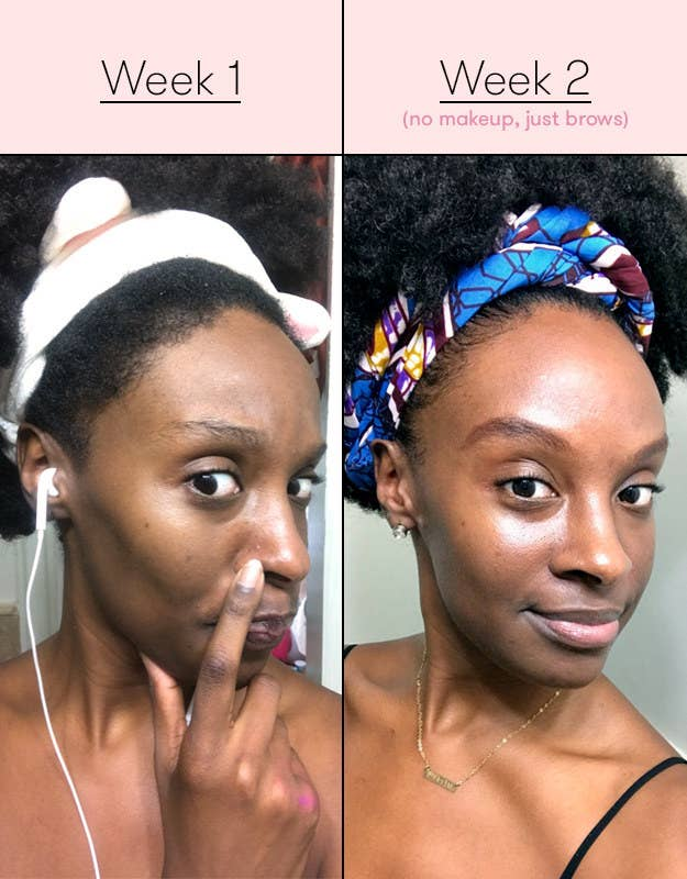 By week two, a stubborn pimple that had been on the left side of my nose for about two weeks was completely gone, and blemishes on my cheeks were already ...