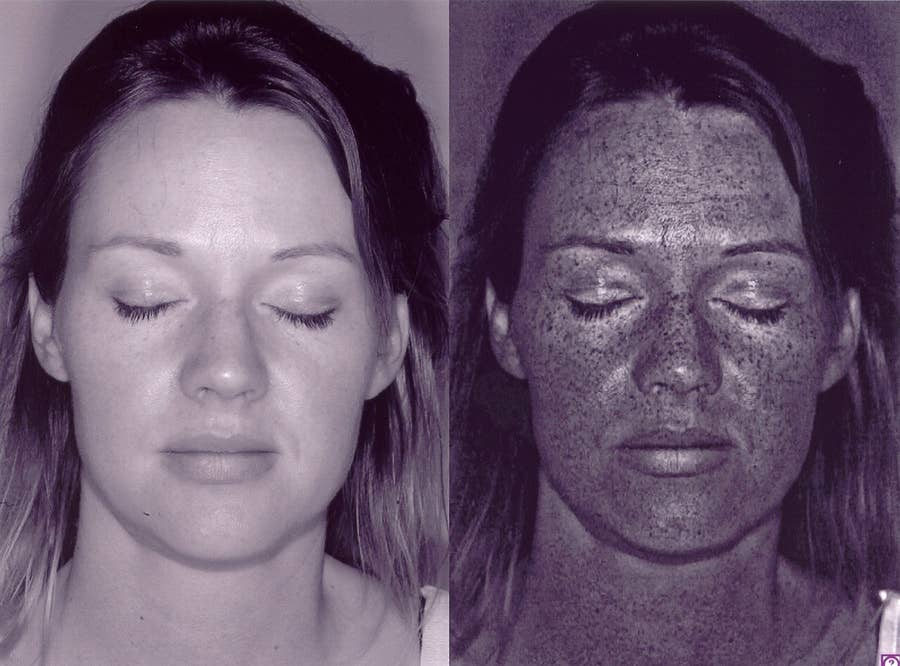e9195e4400b75 12 segredos que os dermatologistas nunca te dirão e 12 coisas que ...