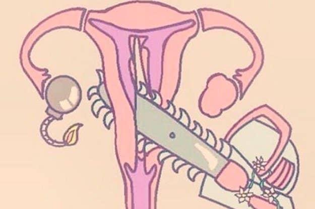 14 Cosas que necesitas saber sobre el dolor crónico vaginal