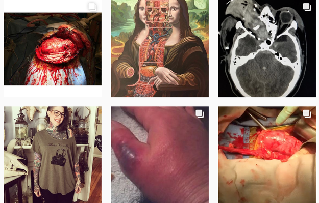 This Instagram account by Nicole Angemi, a pathologist's assistant, showcases organ dissection, autopsies, and gruesome injuries. The images, while gory in nature, are humanized by her captions, giving an honest insight into the human body and death.