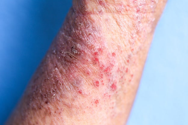 Eczema is a condition that causes the skin to become red, itchy, and inflamed. If you have it, you know how much it sucks — and while there's no cure, eczema is treatable.