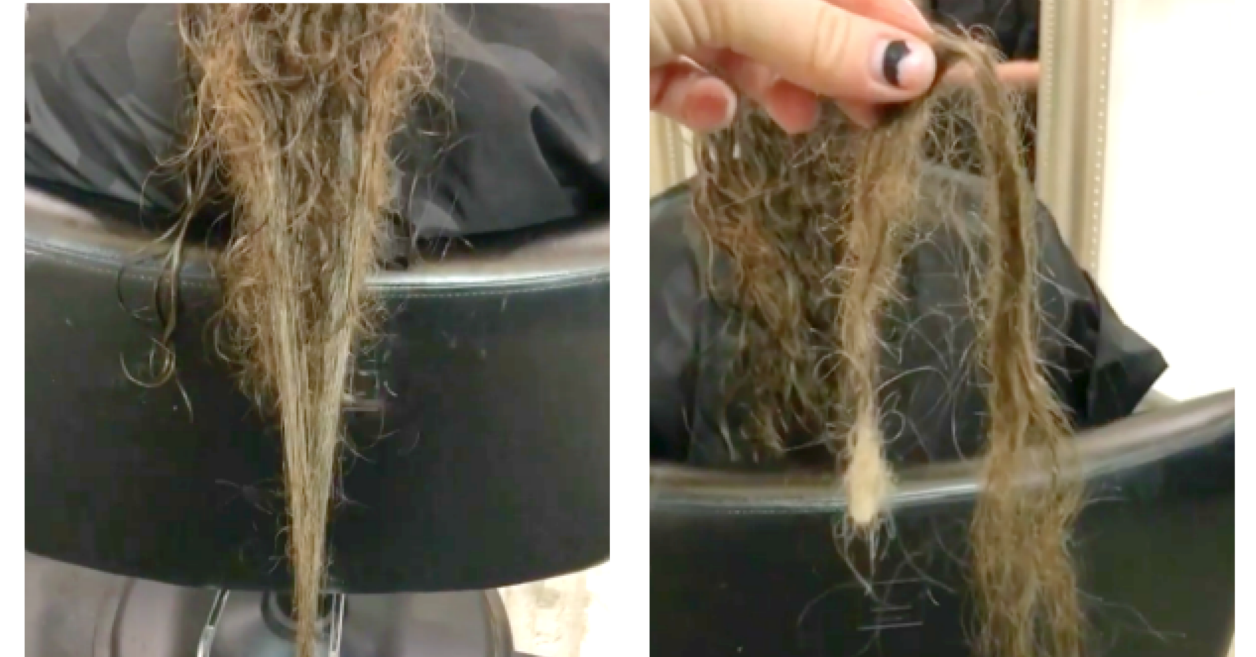 This Mom's Video Of Her Postpartum Hair Loss Has Instagram Shook