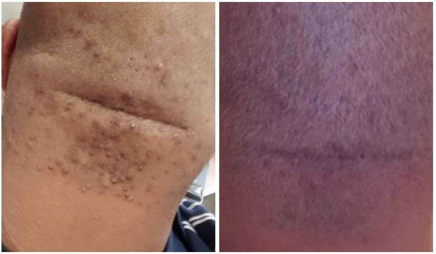 Bumps razor Pseudofolliculitis Barbae: